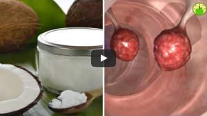 coconut oil colon cancer