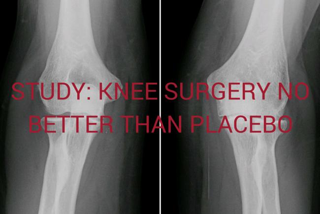 Osteoarthritis_knee_greenmedinfo
